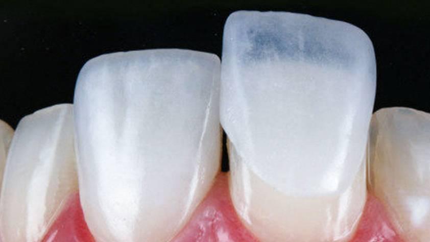 Lentes de contato dentais contribuem para aumento da autoestima